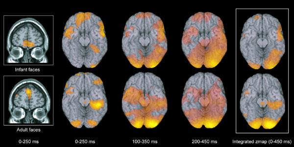 Adults Brains 120